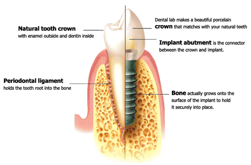 Dr. Gramins talks dental implants versus a conventional bridge.